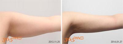arm and bra line liposuction