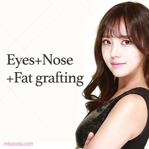 Eyes+Nose+Fat grafting