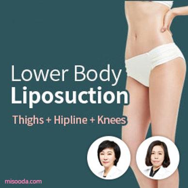 PRETTY BODY ClLINIC : Lower Body Liposuction