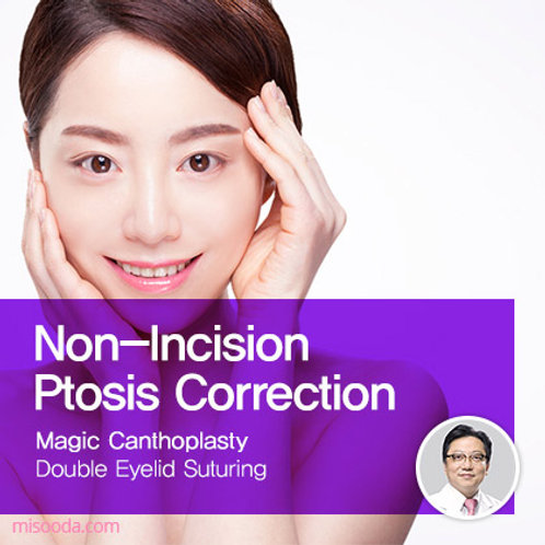 Non-Incision Ptosis Correction with Canthoplasty