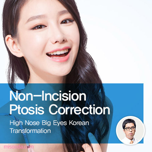 Non-Incision Ptosis Correction and Low Nose Augmentation