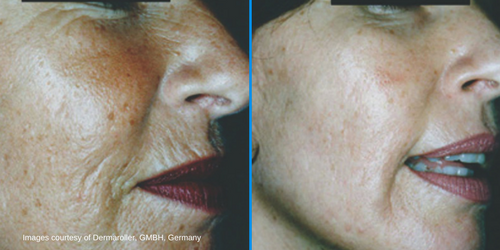 GD Manual skin needling Dermaroller, GMBH, Germany.png