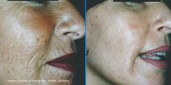 GD Manual skin needling Dermaroller, GMBH, Germany.png