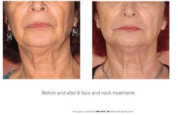 Lower Face Before and After