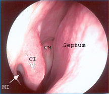 endoscopie fosse nasale droite
