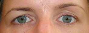 Silent Sinus Syndrom (gauche): aspect clinique