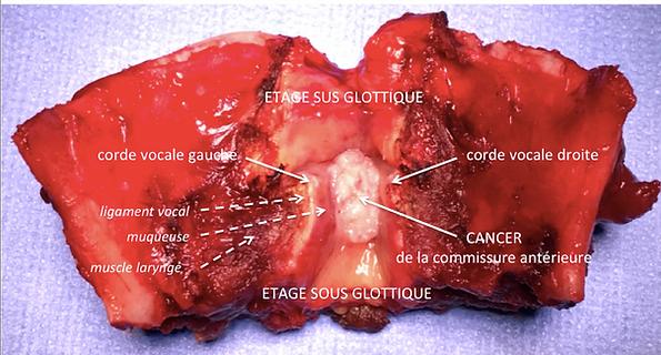 LPSC Laryngectomie Partielle SupraCricoïdienne: pièce opératoire