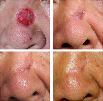 Rétraction cutanée aprés cicatrisation dirigée