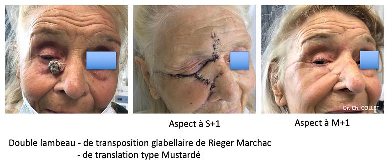 Réparation perte de substance vallée des larmes - double lambeau