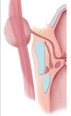 Laryngocèle externe: schéma anatomique