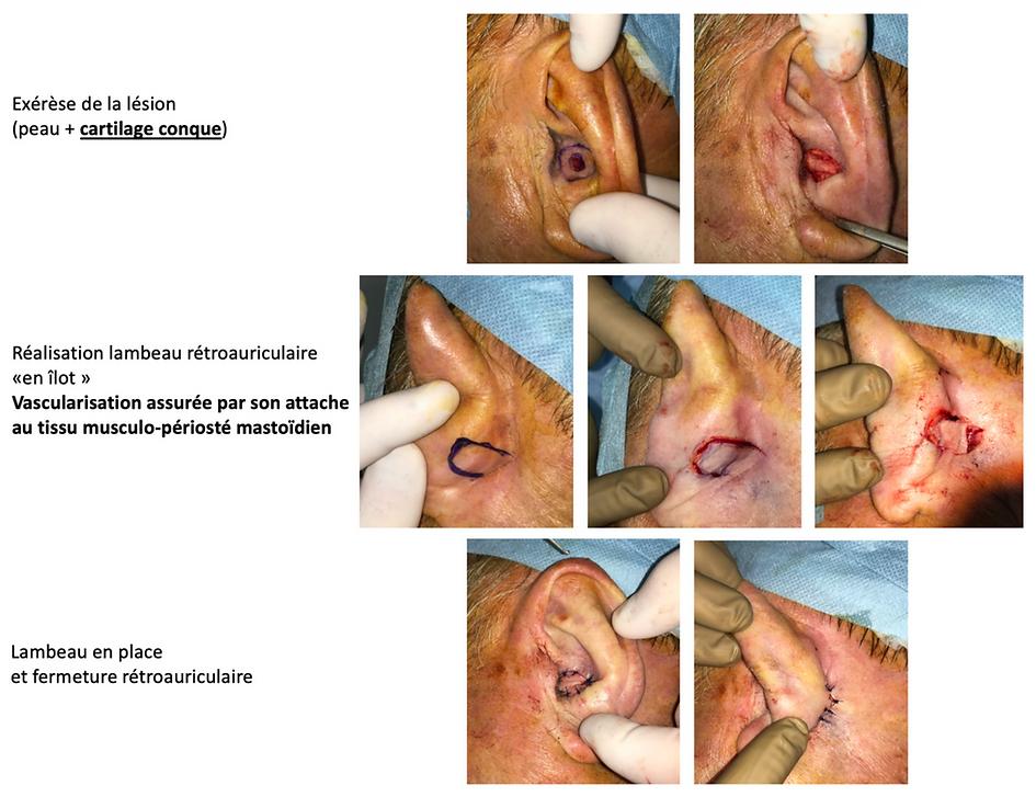 Réparation perte de substance de la conque du pavillon de l'oreille par lambeau rétroauriculaire