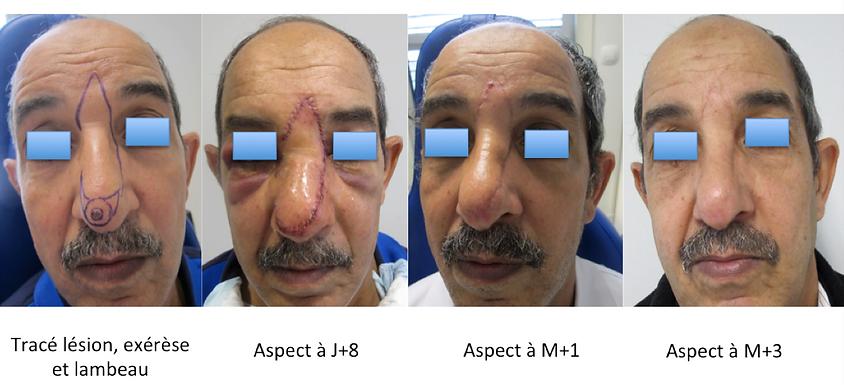 Cancer cutané de lapointe du nez: reconstruction par lambeau de Rieger Marchac