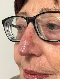 greffe aprés exérèse d'un cancer cutané de la pointe du nez