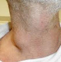 Adénomégalie (gros ganglion) basicervicale droite
