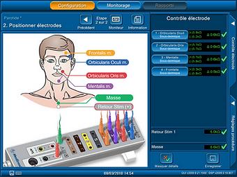 Monitoring du nerf facial dans la chirurgie de la parotide