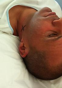 Technique du ganglion sentinelle pour cancer de lacavité orale: marquage préopératoire