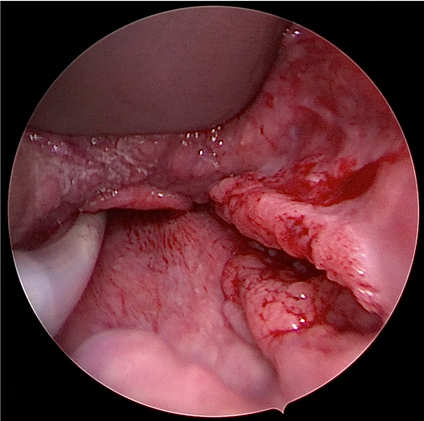 cancer oropharynx lateral droit ROB.png