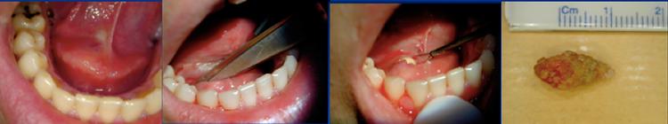 """calcul salivaire: extraction par voie endobuccale (""""taille""""endobuccale) pour une lithiase (calcul) bloquée à l'extrémité distale du canal salivaire de Wharton droit"""