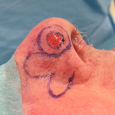 perte de substance du lobule latéral du nez reconstruite par lambeau bifolié