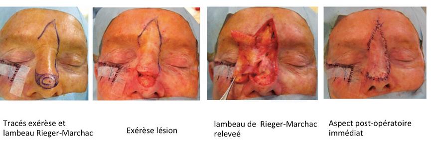 Principe chirurgical (aspect peropératoire) du lambeau de Rieger Marchac pour la reconstruction des pertes de substance du nez aprés exérèse d'un cancer cutané
