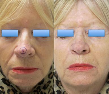 Aspect post-opératoire aprés exérèse d'un cancer cutané de la pointe du nez avec reconstruction par lambeau bifolié de Zitelli