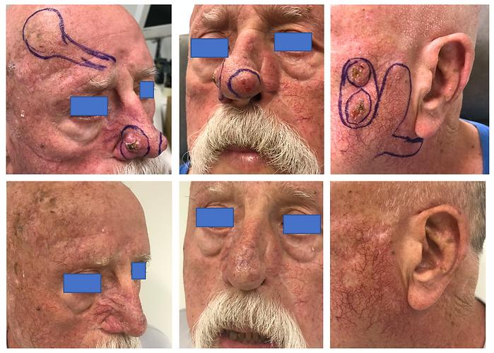 Exemple d'utilisation d'Erivedge pour CBC multiples de la face