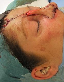 lambeau frontal paramédian . Reconstruction PdS du nez (lobule latéral)