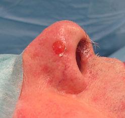 lésions cutanée ulcérée de la portion latérale du lobule du nez