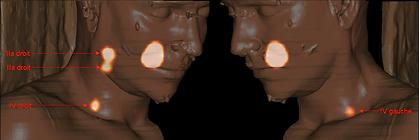 lymphoscintigraphie cervicale avant adénectomie : technique du ganglion sentinelle pour les caners de la cavité orale
