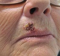 uper lip carcinoma - carcinome lèvre supérieure