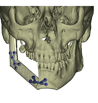 Reconstruction de la mandibule  avec planification préopératoire 3 D assistée par ordinateur aprés chirurgie d'un cancer de la cavité orale