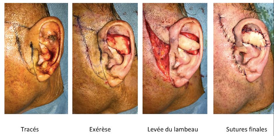Lambeau cutané préauriculaire pour reconstrcution de perte de substance de la face latérale du pavillon de l'oreille