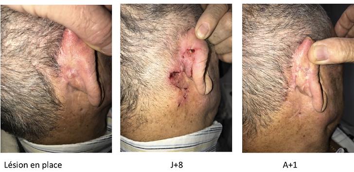 cancer rétroauriculaire: reconstruction par lambeau bifolié de Zitelli