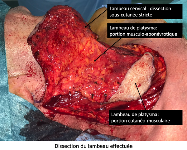 Lambeau de Platysma: principes dissection