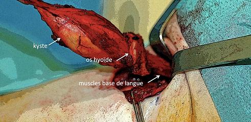 KTT: kyste du tractus thyreoglosse. vue per opératoire (intervention de Sistrunk). Exérèse enmonobloc du KTT, de l'os hyoïde et d'un cone musculairetaillé au dépens des macles de la base de langue