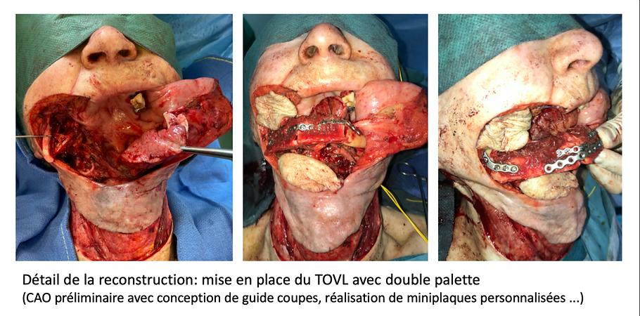 double lambeau libre: chinois - TOVL de fibula - cancer récidivé de la cavité buccale - chirurgie en rattrapage
