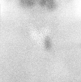 Scintigraphie MiBi d'un adénome parathyroïdien inférieur gauche