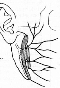 Rapport entre parotide et nerf facial