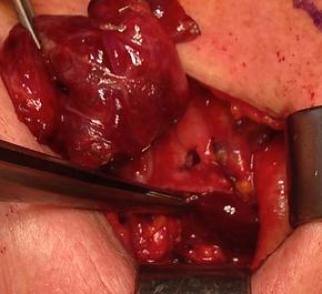 Vue per opératoire d'unechirurgie pour un adénome parathyroïdien inférieur droit au contact du tronc artériel brachio-céphalique (TABC)