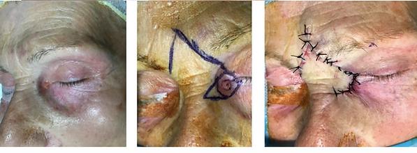 cancer du canthus interne. Reconstruction par lambeau glabellaire