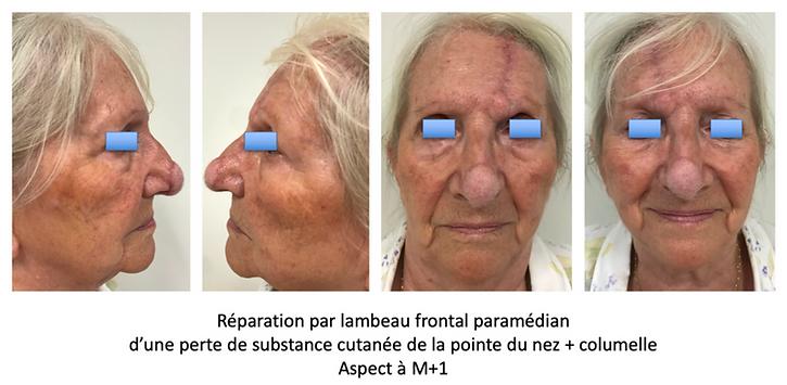 Lambeau frontal paramédian réparation perte de substance  cutanée pointe du nez et columelle