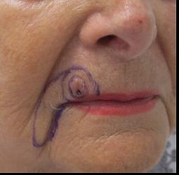 upper lip carcinoma
