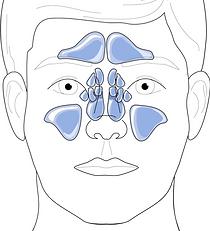 Schéma des inus paranasaux avec positionnement de la méatotomie moyenne