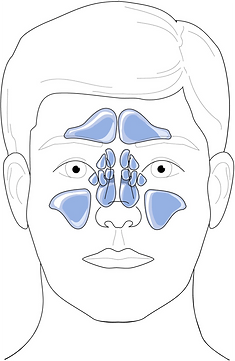 Schéma anatomie des sinus paranasaux