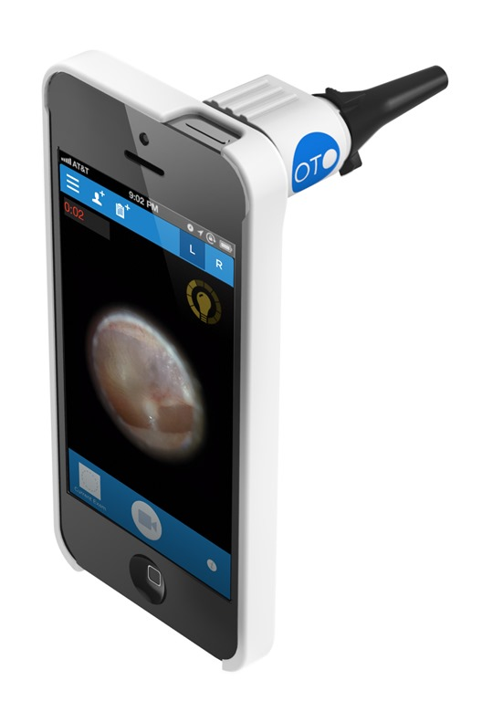 otoscopie et smartphone