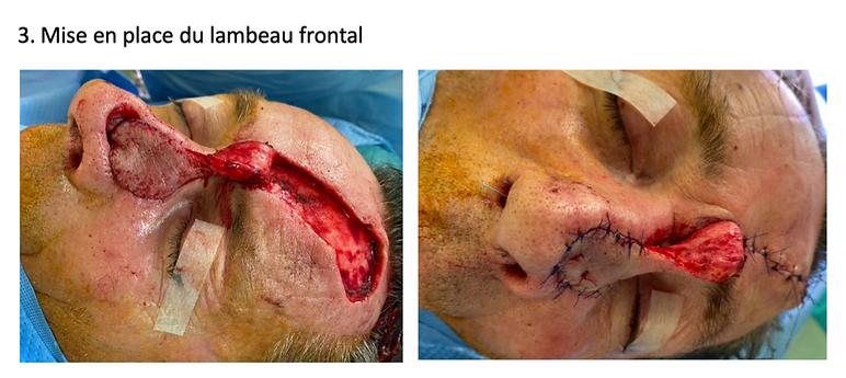 Lambeau frontal paramedian. Paramedian forehead flap