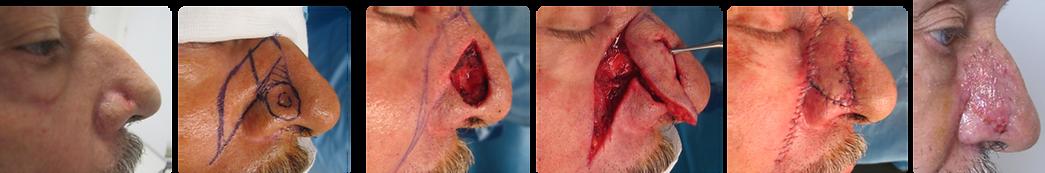 cancer cutané de l'aile narinaire: reconstruction par lambeau nasogénien à péducle supérieur (lambeau de Préaux)