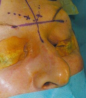 POnction sinus frontal: repoères de fraisage