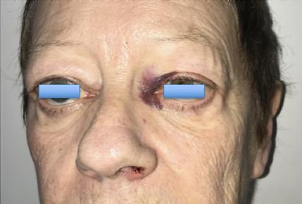ecchymose canthus interne aprés chirurgie endonasale des sinus