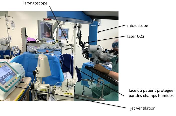 Installation opératoire pour cordectomie transorale laser